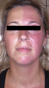 One-sided redness after unilateral surgery